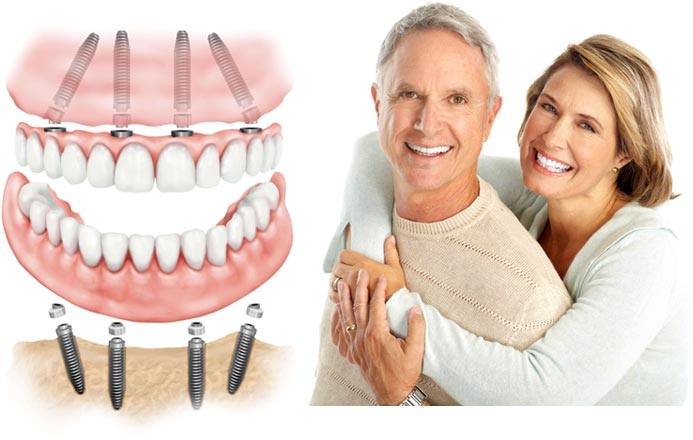 Kết quả hình ảnh cho Dental Implant prevents jaw bone loss tooth